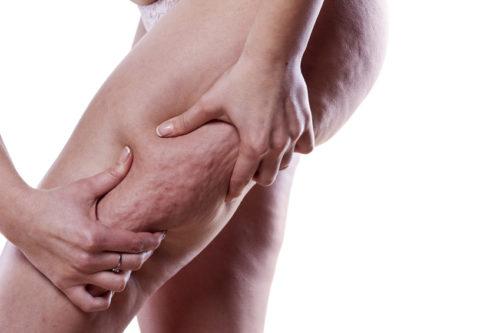 cellulite membres inférieurs
